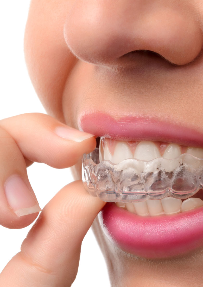 ortodonzia_fissa_mobile_dentista_velletri_roma_sud_lariano_castelli_romani